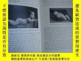 二手書博民逛書店Diseases罕見of children 1929布面精裝,品