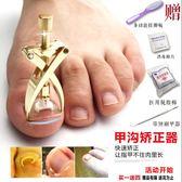 腳趾甲矯正器甲溝嵌甲矯正貼長肉裏專用指甲刀剪鉗腳溝修腳套裝炎