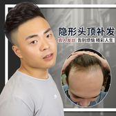 真人發絲男士頭頂補發片 發際線織發補發 假發男 發頂禿頂補發塊