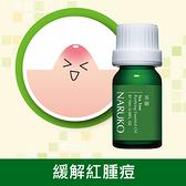 NARUKO茶樹神奇痘痘油10ml