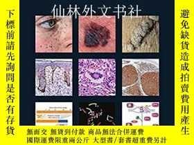 二手書博民逛書店【罕見】WHO Classification of Skin Tumours (Medicine)Y27248