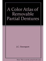 二手書博民逛書店 《A Colour Atlas of Removable Partial Dentures》 R2Y ISBN:0723416206│J.C.Davenport