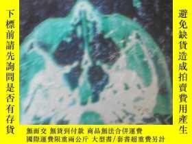 二手書博民逛書店腫瘤放射治療計劃設計罕見胡逸民.張紅志 主編Y19658 胡逸民
