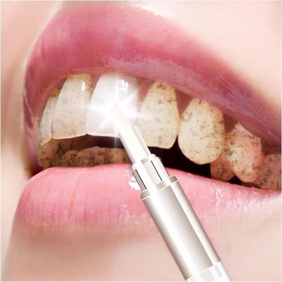牙齒美白筆速效去除黃牙垢煙漬牙漬氟斑牙四環素牙洗牙粉牙貼神器 巴黎春天