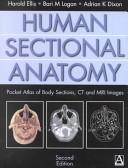 二手書《Human Sectional Anatomy, 2Ed: Pocket Atlas of Body Sections, CT and MRI Images》 R2Y ISBN:0340807644