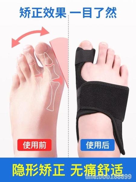分趾器 大腳骨大拇指男女士足改善鞋兒童腳趾頭拇母矯形器 星河光年