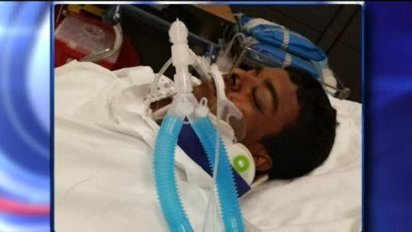 Teen on bike hit by car, driver didn't stop