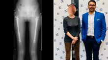 Woman has unique surgery for shot at Hollywood success