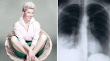 As Doris Day dies of pneumonia aged 97, what are the symptoms of the condition?