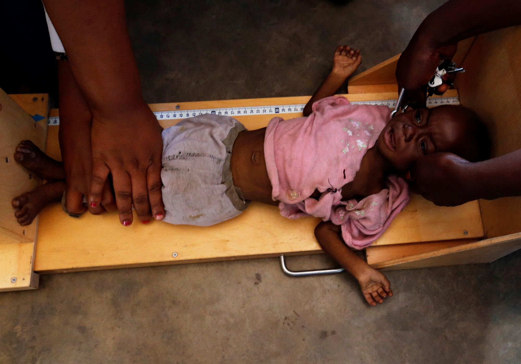 <p>A severely acute malnourished and internally displaced Congolese child is screened at the Tshiamala general referral hospital of Mwene Ditu in Kasai Oriental Province in the Democratic Republic of Congo, March 15, 2018. Picture taken March 15, 2018. (Photo: Thomas Mukoya/Reuters) </p>