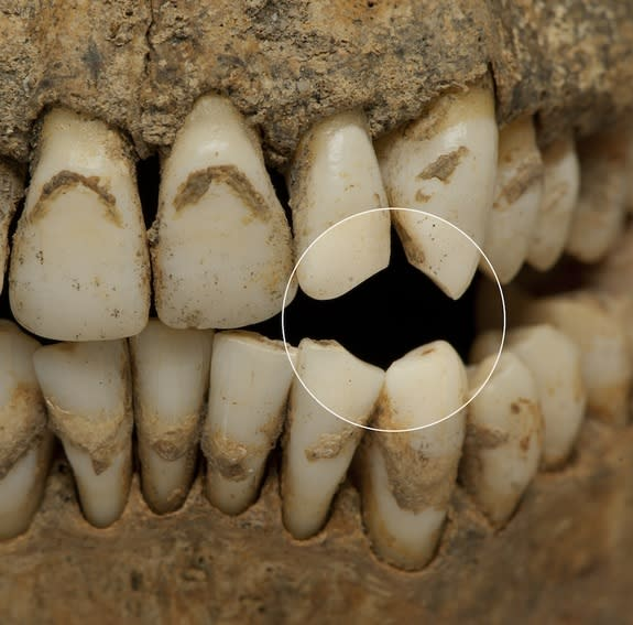 The teeth in some individuals were worn, a sign that they enjoyed smoking a pipe, according to the archaeologists.