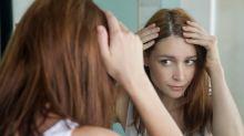 Veja tratamentos caseiros para a caspa!