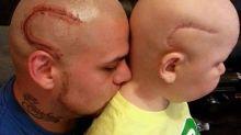 Pai que tatuou cicatriz em apoio ao filho se despede do garoto de 9 anos