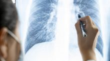 Lung function shows improvement at 12 weeks in COVID long-haulers, study finds