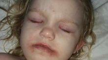 Garotinha vai parar no hospital por conta de kit de maquiagem de brinquedo