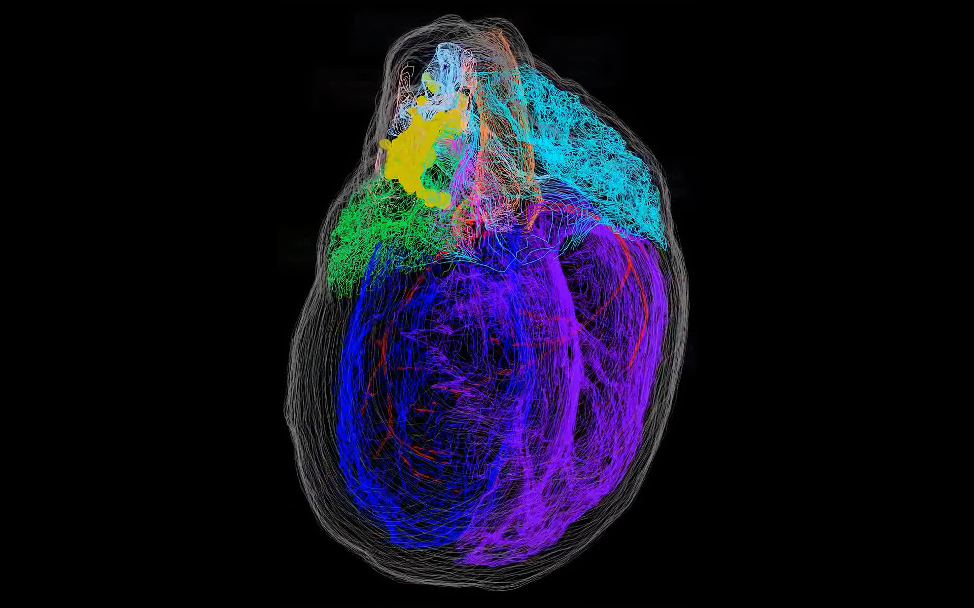3D model of a heart's neurons