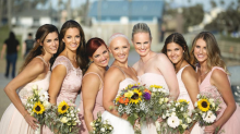 Woman With Alopecia Rocks Her Baldness With Confidence, Especially on Her Wedding Day