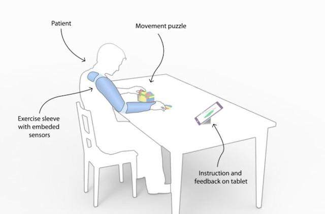 Wearable sleeve could improve stroke recovery therapy