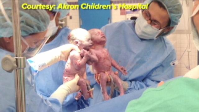 Lightning Strikes Twice at Ohio Hospital With Rare Twins