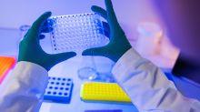 Covid-19: pourquoi développe t-on des formes graves du virus?
