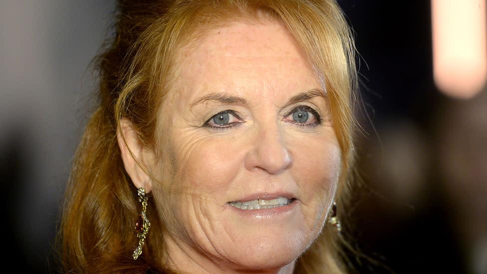 Sarah Ferguson had two 'no-knife' face lifts and botox