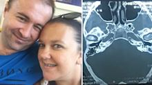 'A cotton bud almost killed me': Mum's near-death experience after cleaning her ear