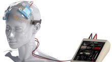 ¿Reduciremos la violencia en el futuro con electro-estimulación cerebral?