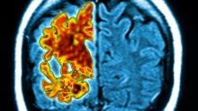 Alzheimer's could be caused by excess sugar: new study finds 'molecular link'