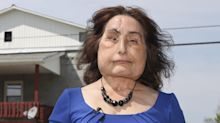 Connie Culp, the 1st face transplant recipient in the U.S., dies at 57