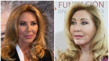 Norma Duval reaparece con nuevo rostro