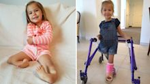 Toddler with 'backward legs' walks for the first time thanks to life-changing surgery
