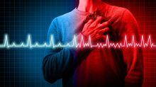 【香港浸會大學中醫藥學院專欄】中醫看房顫的發病機理