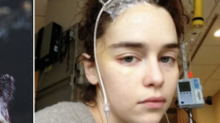 'Game of Thrones' Actress Emilia Clarke Says She Felt 'Unattractive' After Her Brain Surgery