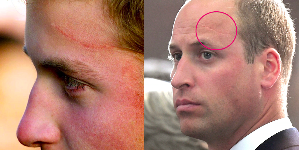 Prince William Has A Legit Harry Potter Scar On His Head And The Story Behind It Extremely Royal We looked inside some of the tweets by @joshua__potter and here's what we found interesting. yahoo news singapore
