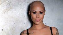 Jovem faz desabafo sobre a alopecia e acaba se tornando modelo