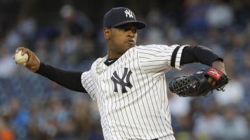 Bronx Bummer: Tommy John surgery for Severino