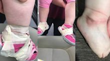 Mother horrified after nursery 'tapes child's shoes to her feet'