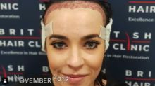 'Hollyoaks' star Stephanie Davis shows off results of hair transplant