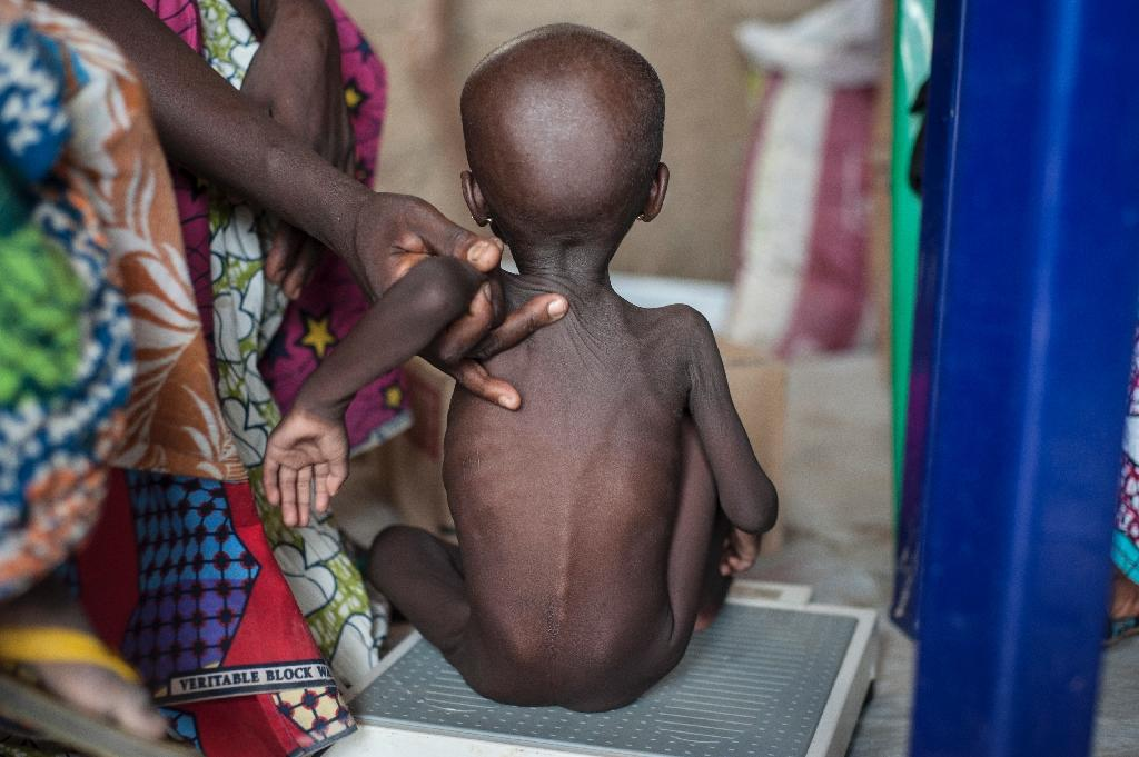 This photo taken on June 30, 2016 shows a young girl suffering from severe acute malnutrition getting weighed at one of the Unicef nutrition clinics (AFP Photo/Stefan Heunis)