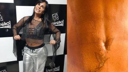 Gretchen reconstrói umbigo e faz lipo de R$ 20 mil