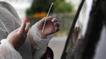"""Covid-19 : les autorités sanitaires approuvent un 3e type de tests, pour """"désengorger"""" les labos"""
