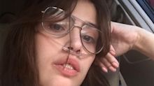 Social Media Star Claire Wineland, 21, Dies a Week After Undergoing a Lung Transplant