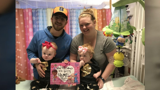 Formerly conjoined twins go home 5 months after separation surgery