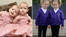 'Miracle twins' start school after surviving radical surgery in mum's womb