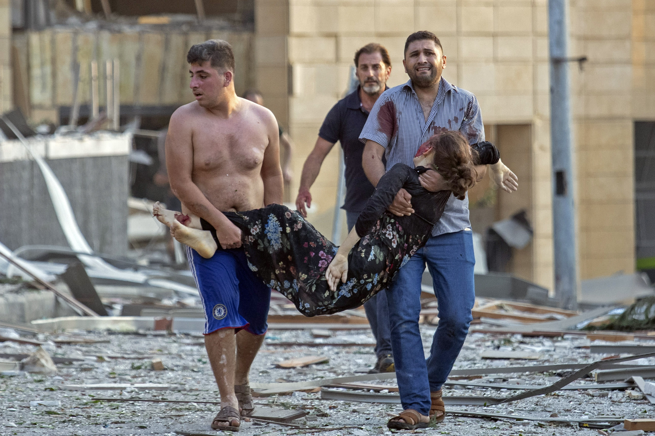 A wounded woman is evacuated after a massive explosion in Beirut, Lebanon, Tuesday, Aug. 4, 2020. (AP Photo/Hassan Ammar)
