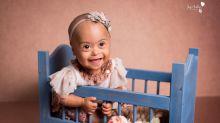 Fotógrafa faz ensaios de crianças com síndrome de down de graça