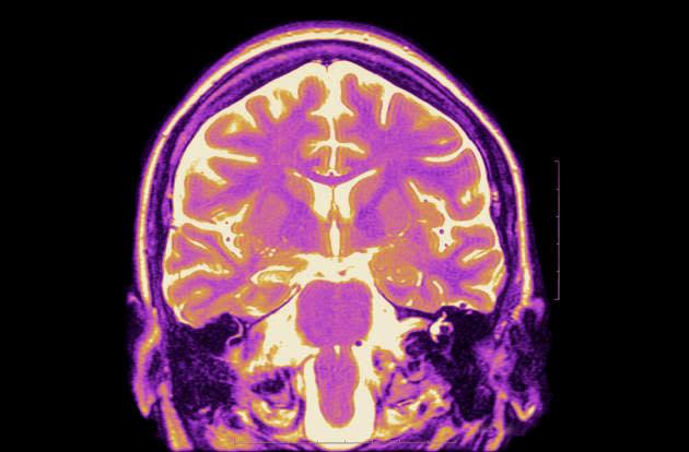 Doctors find a way to deliver drugs straight to your brain