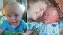 Mum forced to bathe son in bleach due to rare skin condition