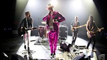 Gord Downie, Lead Singer Of The Tragically Hip, Dead At 53