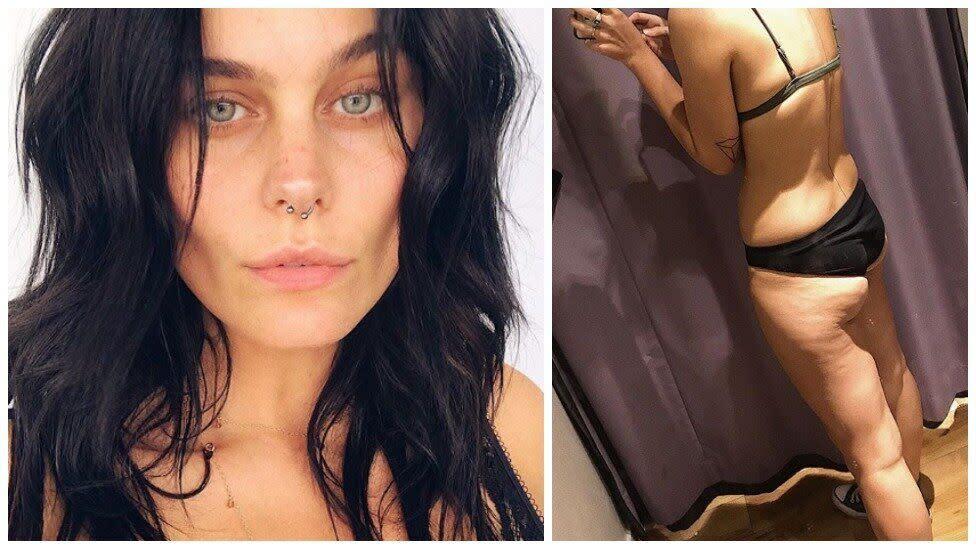 Next Top Model star praised for 'brave' body positive photos